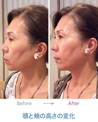 顎と頬の高さの変化
